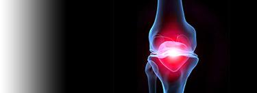 artrose-de-joelho