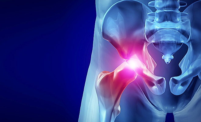 artrose-de-quadril