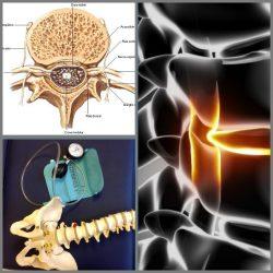 Protusão discal pode gerar dores com características de uma compressão do nervo.