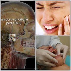 Musculos Masseter e Temporal apresentam sinais de fadiga a mastigação.Veja as causas e sintomas.