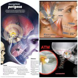 Músculos da cabeça possuem grande resistência. Mas os distúrbios da articulação Temporo Mandibular estão cada vez mais presentes, devido a desequilíbrios musculares e hábitos diários!