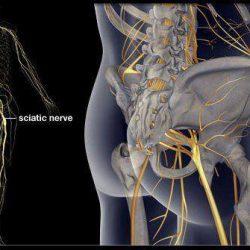 Ciatalgia e cervicobraquialgia
