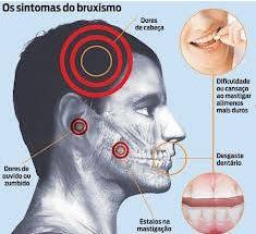 Bruxismo devido a causa multifatorial.O tratamento dessa disfunção comportamental tem que ser amplo e pode envolver,alem da fisioterapia fatores nutricionais.