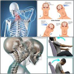 Whiplash – síndrome do chicote. Conheça os sinais, sintomas e classificação.