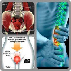 Incontinência urinária e dores de coluna.