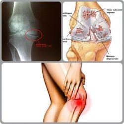 Artrose de joelho – Sinais, e sintomas e tratamento.