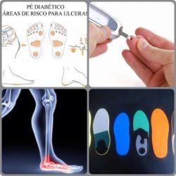 Palmilhas proprioceptivas melhoram as úlceras de pessoas que apresentam pé diabético.