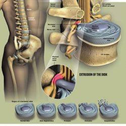 70% das cirurgias por Hérnia de Disco não são necessárias,