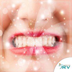 Você sabe como seus dentes podem impactar nas articulações da mandíbula?