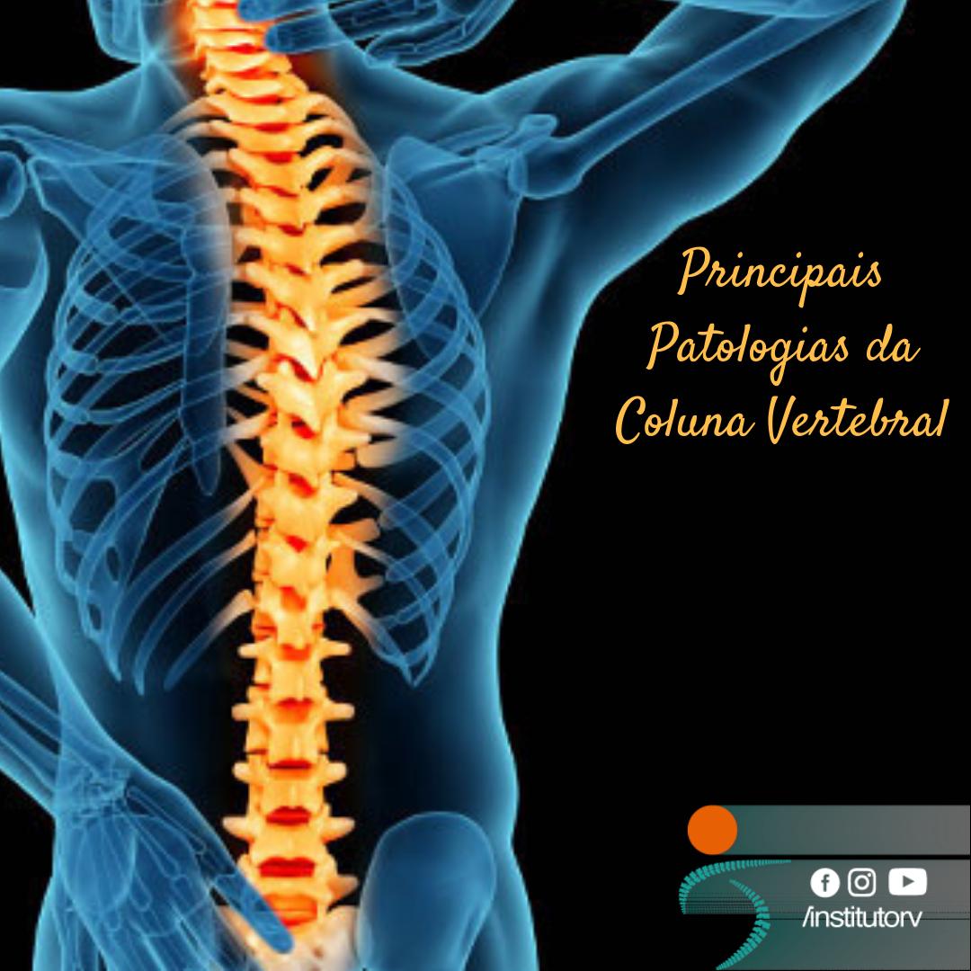 Tratamento de coluna – Patologias mais comuns