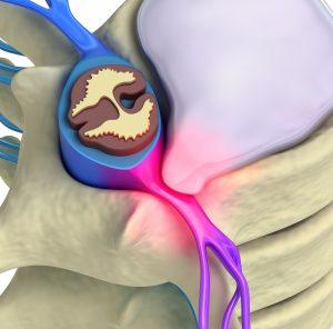 Tratamento de hernia de disco Alphaville