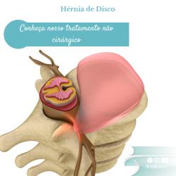 Tratamento de hérnia de disco em São Paulo