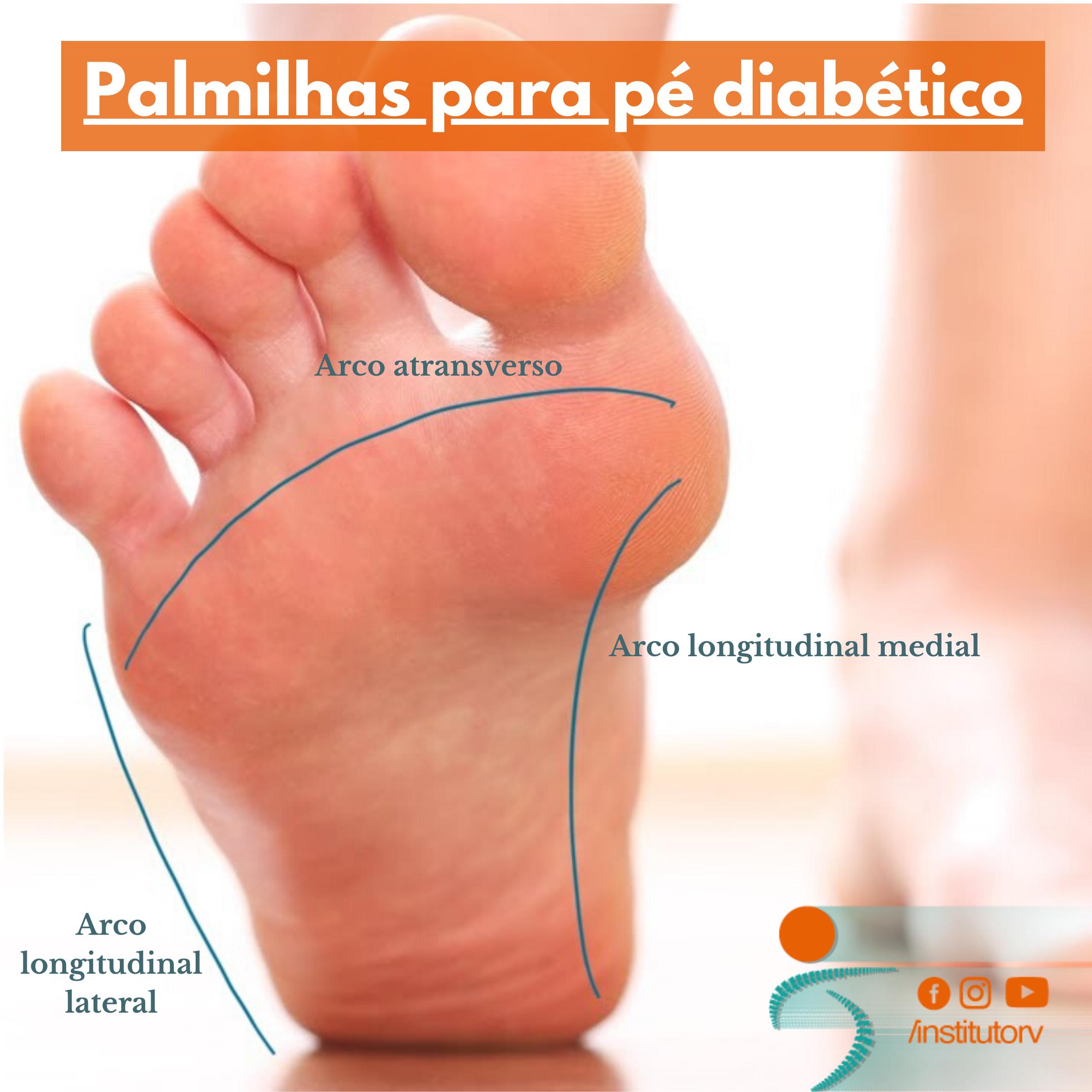 Palmilhas para pé diabético